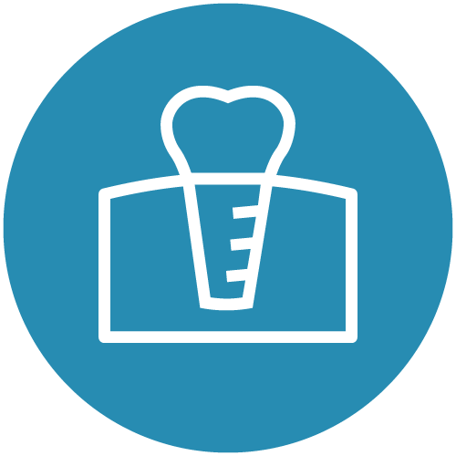 White line icon of a dental implant on a blue circle to represent that you can replace missing teeth with dental implants in Seattle
