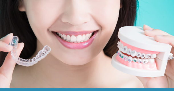 Woman smiling while holding an Invisalign aligner and smile model with braces