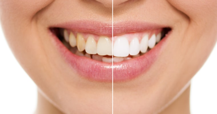 close-up smile before after of common cosmetic dentistry procedures