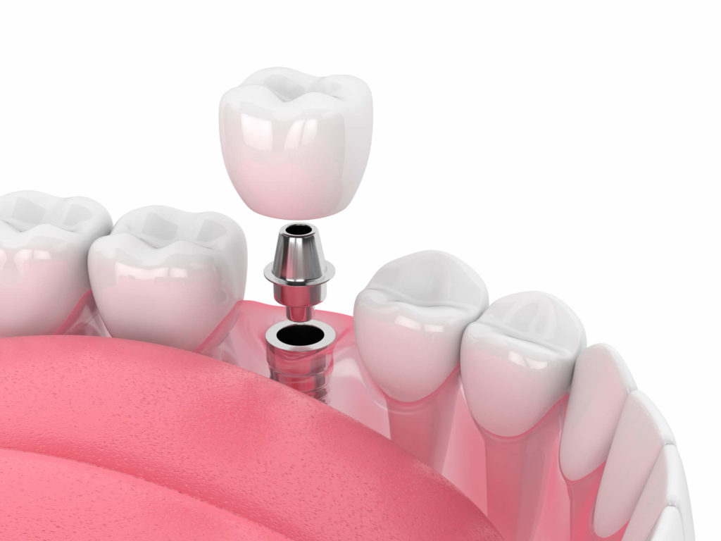 dental-implants-98109-benefits
