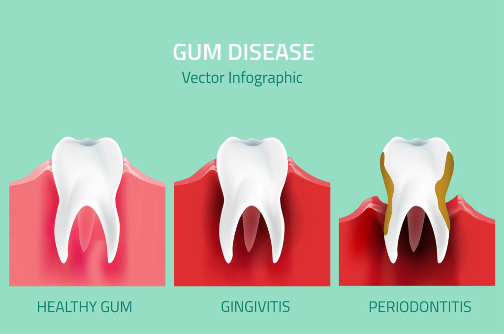 Where can I get Gum Surgery Seattle?
