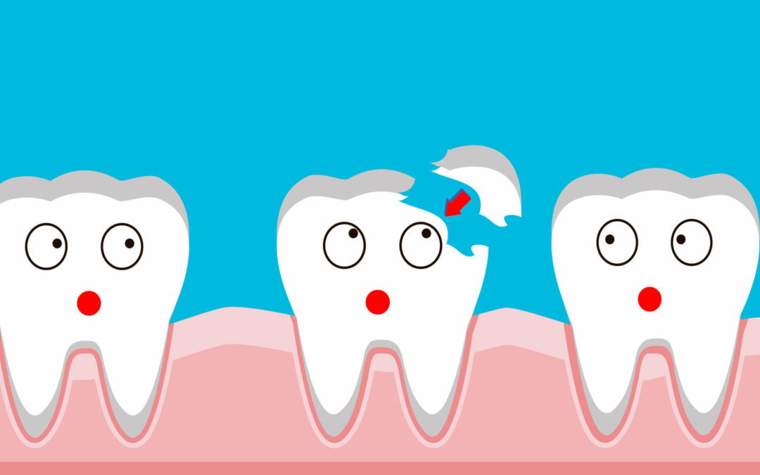 Ideal and Effective Ways to Avoid Cracked Teeth