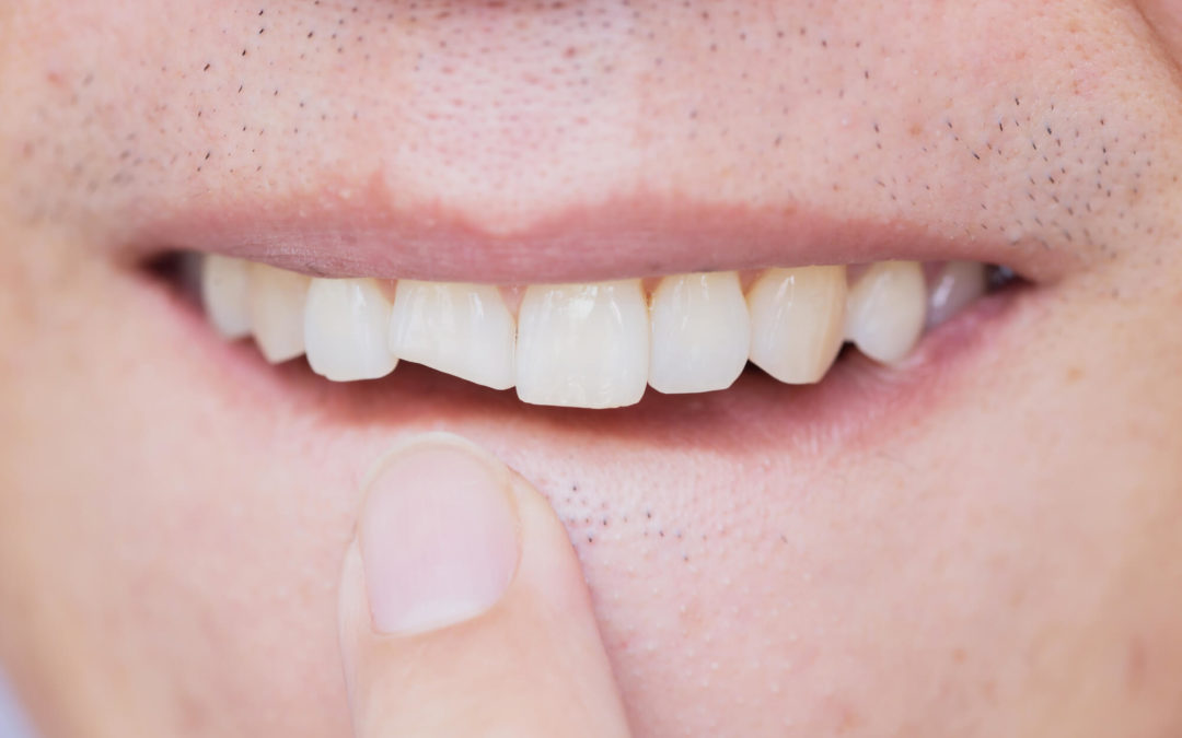 Dental Injuries that Occurs in Sports