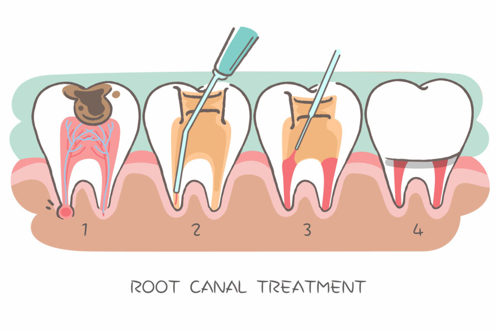Where can I get a Root Canal Lower Queen Anne?